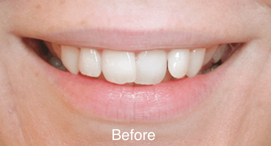 Smile Gallery Before & After - Joseph Majka, DDS
