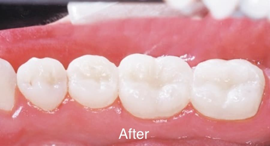 Smile Gallery Before & After